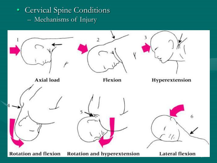 Cervical Spine Conditions