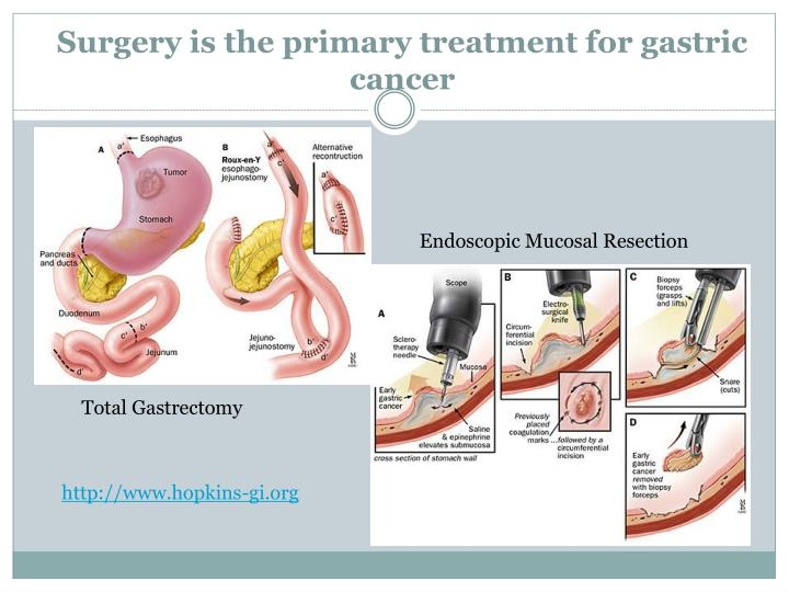 Surgery is the primary treatment for gastric cancer