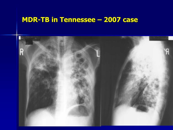 MDR-TB in Tennessee – 2007 case