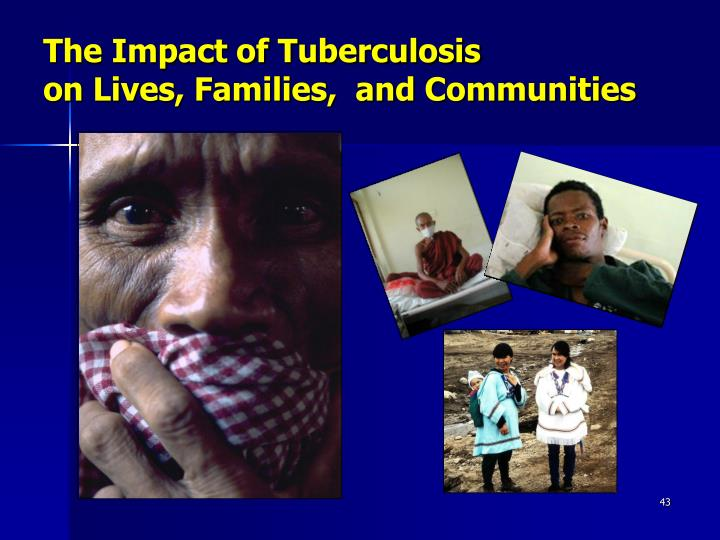 The Impact of Tuberculosis