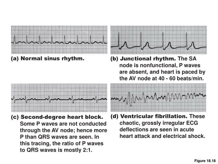 (a) Normal sinus rhythm.