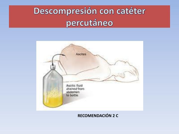 Descompresión con catéter percutáneo