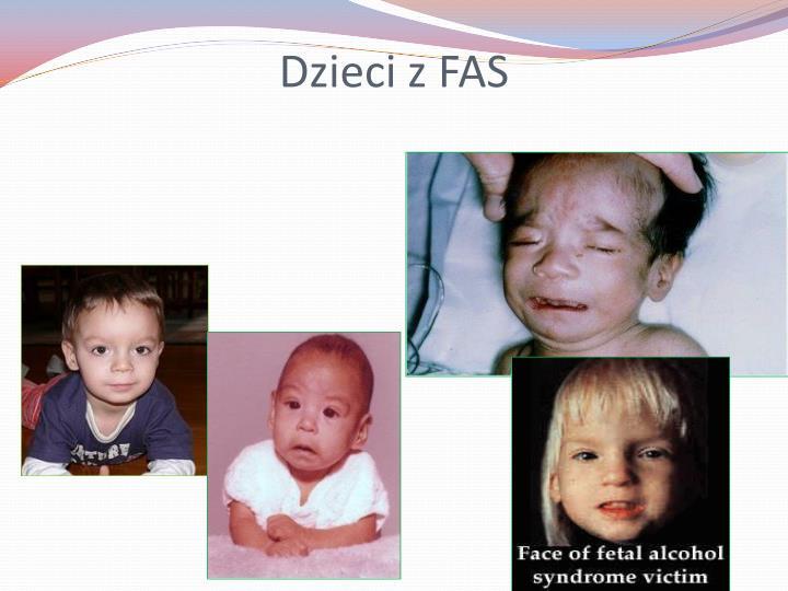 Dzieci z FAS