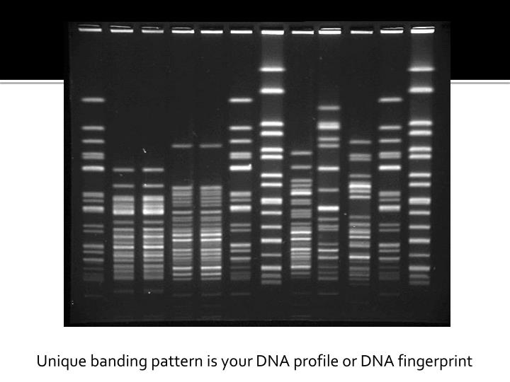 Unique banding pattern is your DNA profile or DNA fingerprint