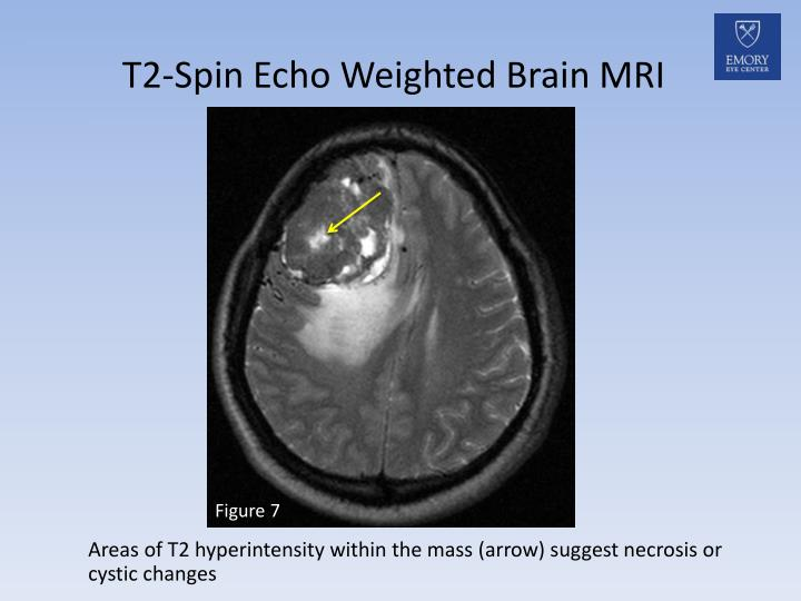 T2-Spin Echo