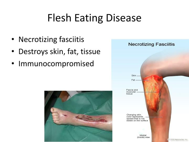 Flesh Eating Disease