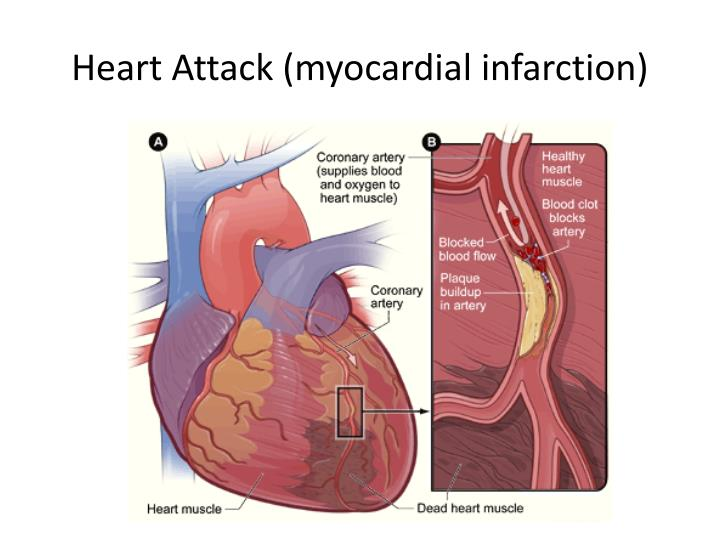 Heart Attack (myocardial infarction)
