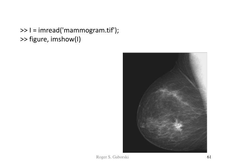 >> I = imread('mammogram.tif');