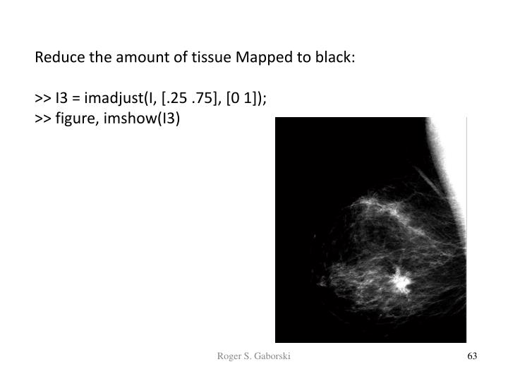 Reduce the amount of tissue Mapped to black: