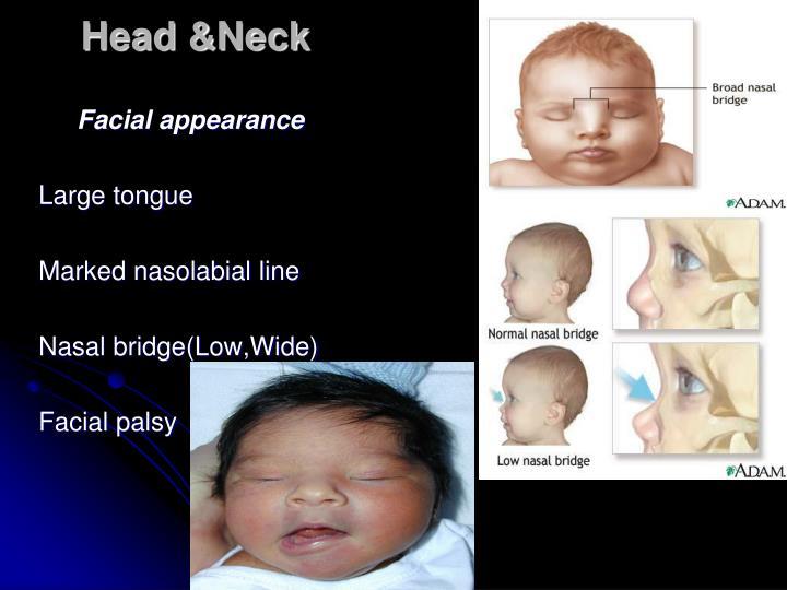 Head &Neck