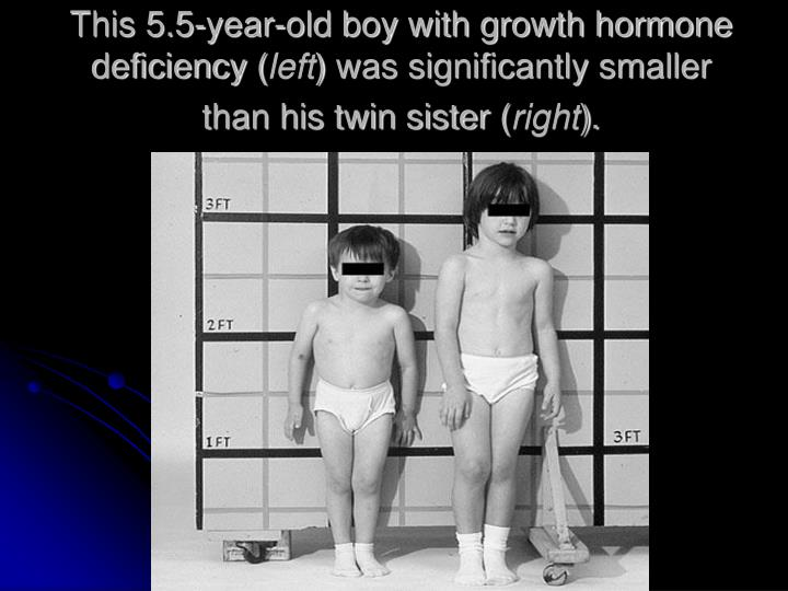 This 5.5-year-old boy with growth hormone deficiency (
