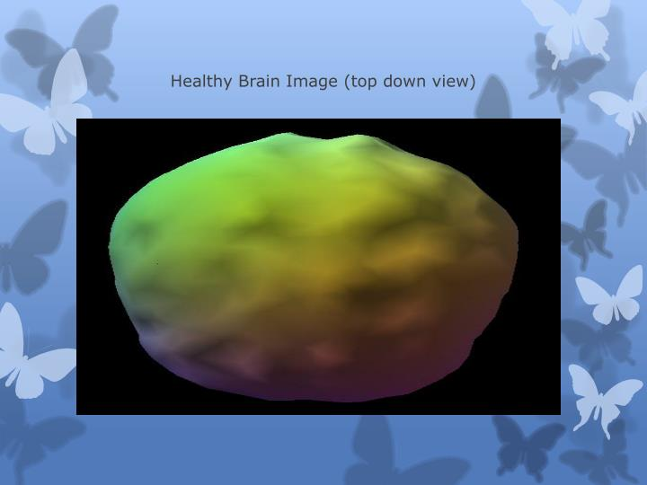 Healthy Brain Image (top down view)