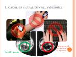 1 cause of carpal tunnel syndrome