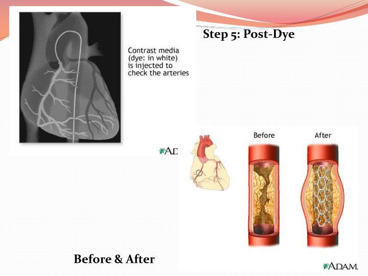 Step 5: Post-Dye