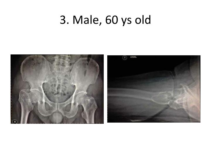 3 male 60 ys old