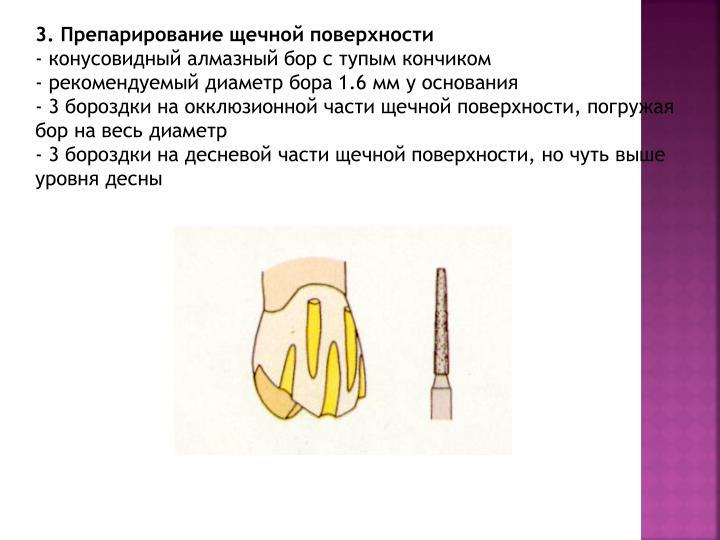 3. Препарирование щечной поверхности
