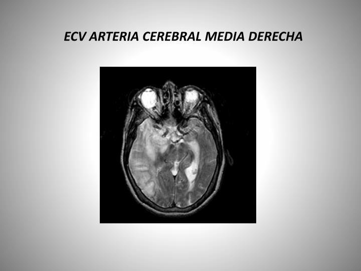 ECV ARTERIA CEREBRAL MEDIA DERECHA