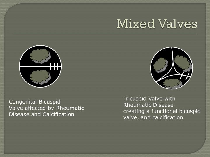 Mixed Valves