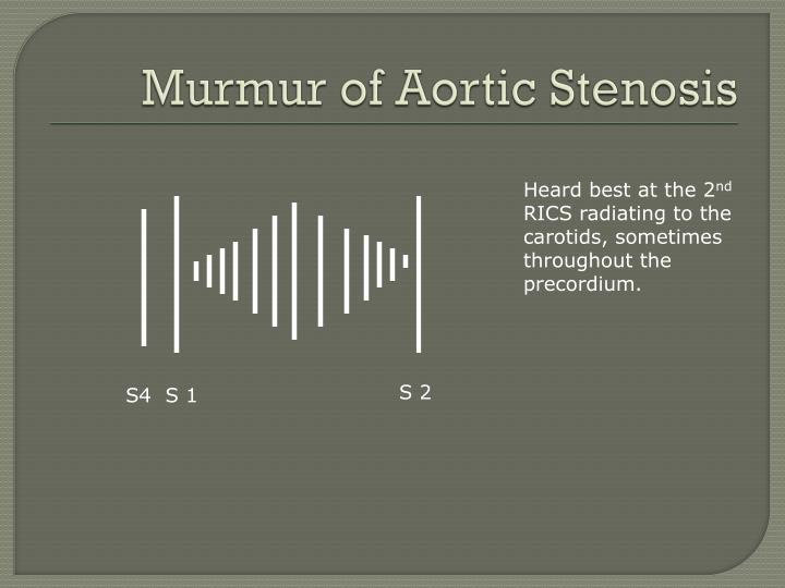 Murmur of Aortic Stenosis