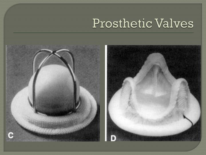 Prosthetic Valves