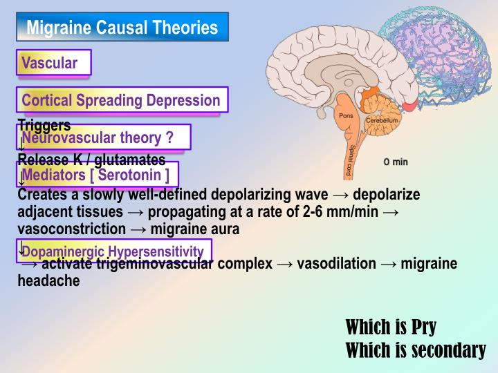 Migraine Causal Theories