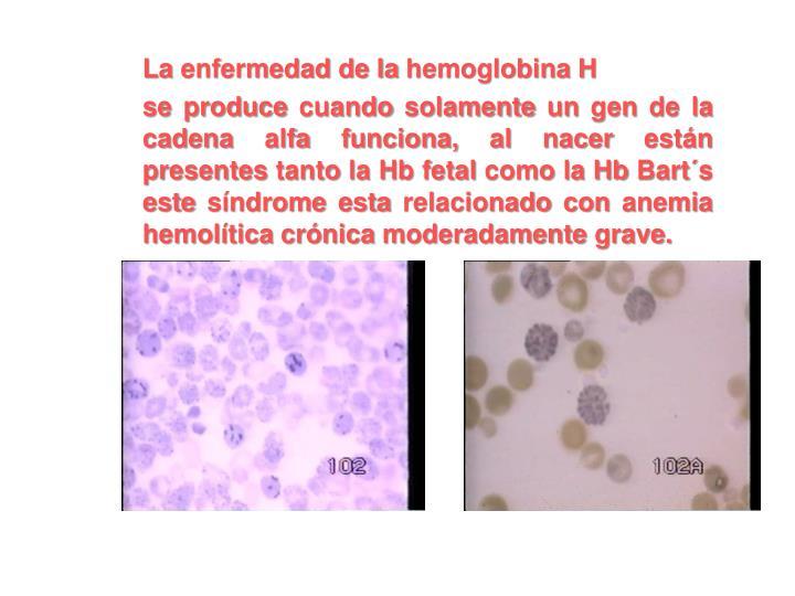 La enfermedad de la hemoglobina H