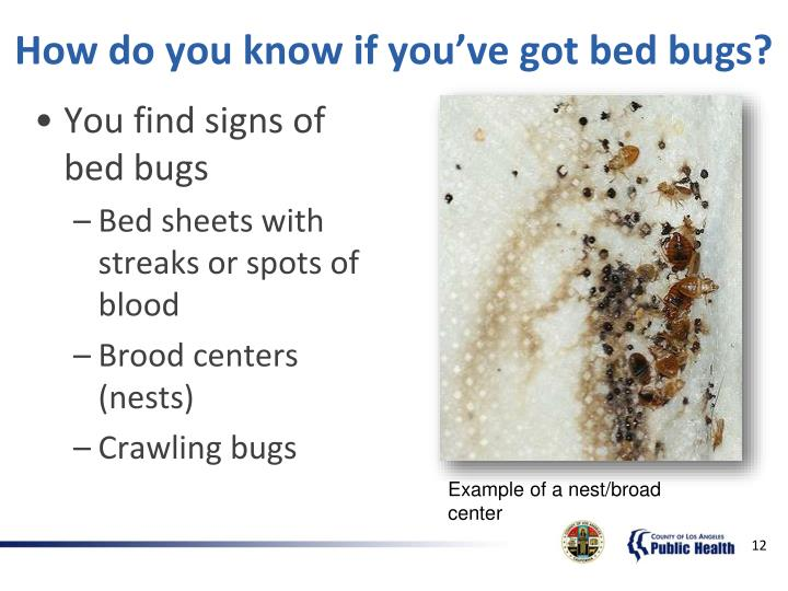 How do you know if you've got bed bugs?