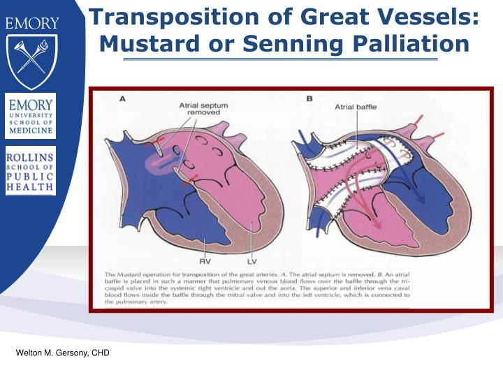 Transposition of Great Vessels:
