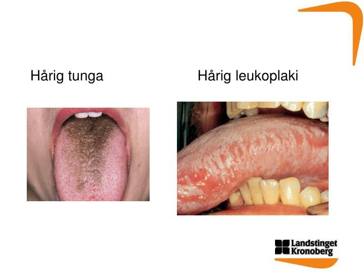 Hårig tunga                        Hårig