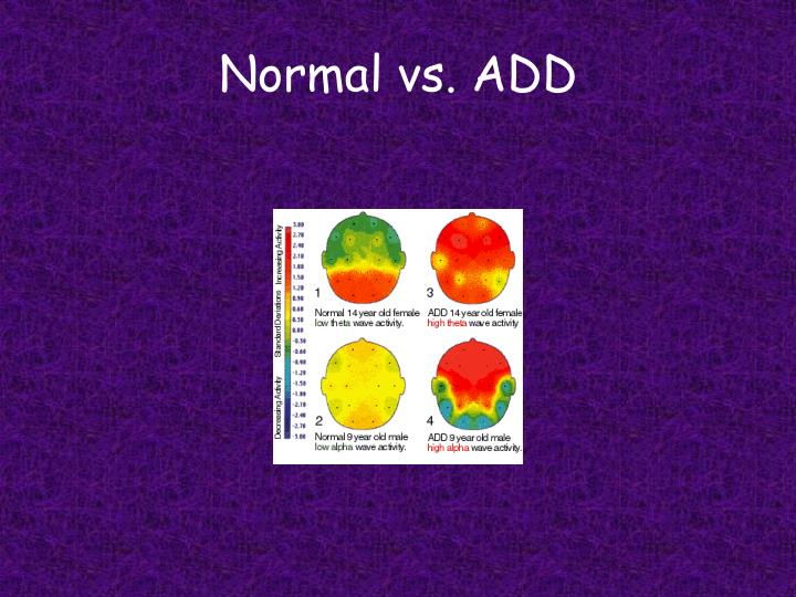 Normal vs. ADD