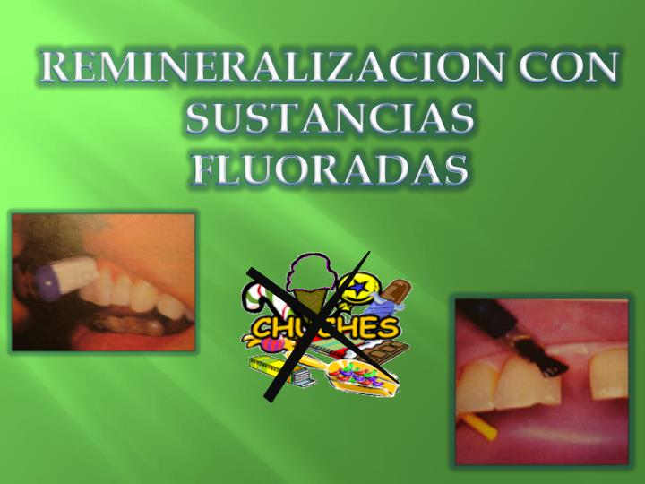 REMINERALIZACION CON SUSTANCIAS  FLUORADAS
