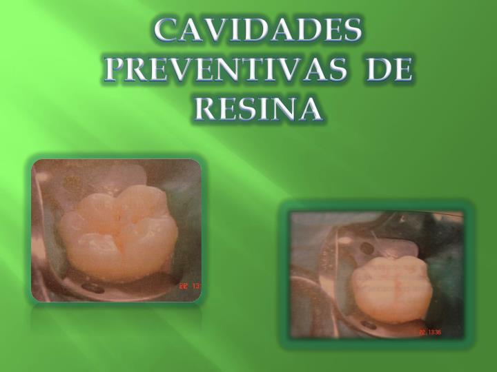 CAVIDADES  PREVENTIVAS  DE  RESINA