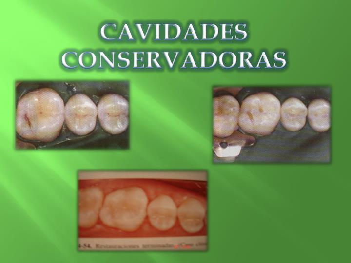 CAVIDADES  CONSERVADORAS