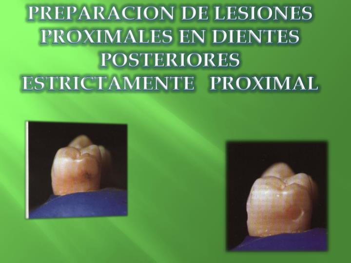 PREPARACION DE LESIONES PROXIMALES EN DIENTES POSTERIORES