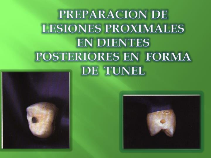 PREPARACION DE LESIONES PROXIMALES EN DIENTES POSTERIORES EN