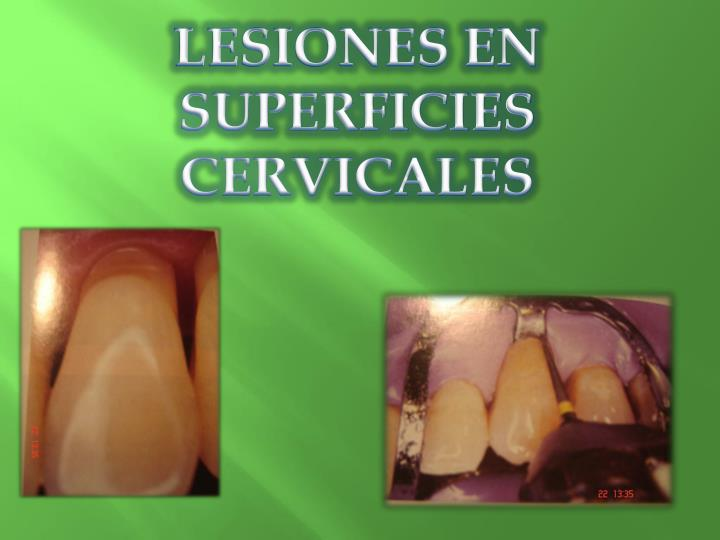 LESIONES EN SUPERFICIES CERVICALES
