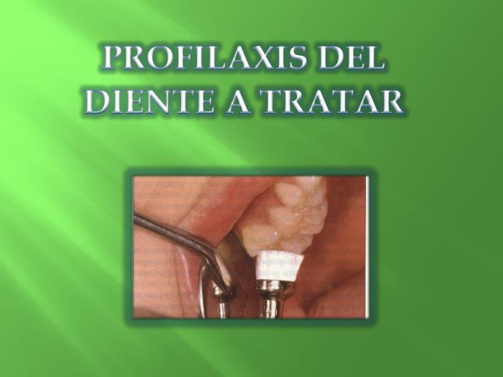 PROFILAXIS DEL DIENTE