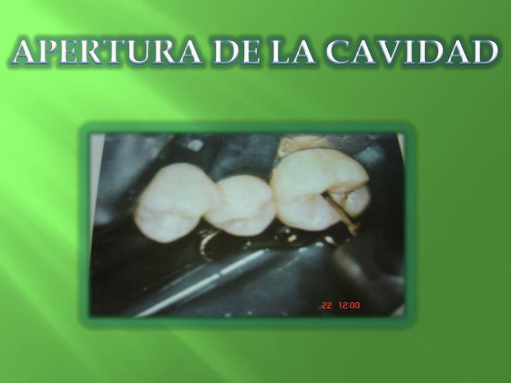 APERTURA DE LA CAVIDAD