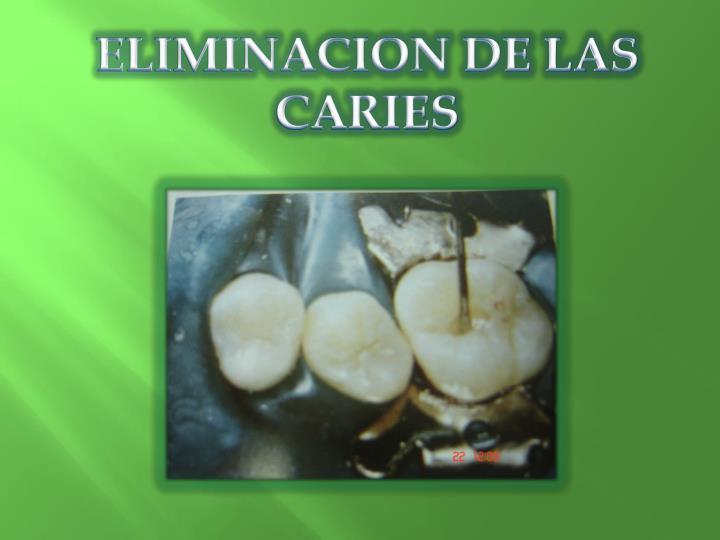 ELIMINACION DE LAS CARIES