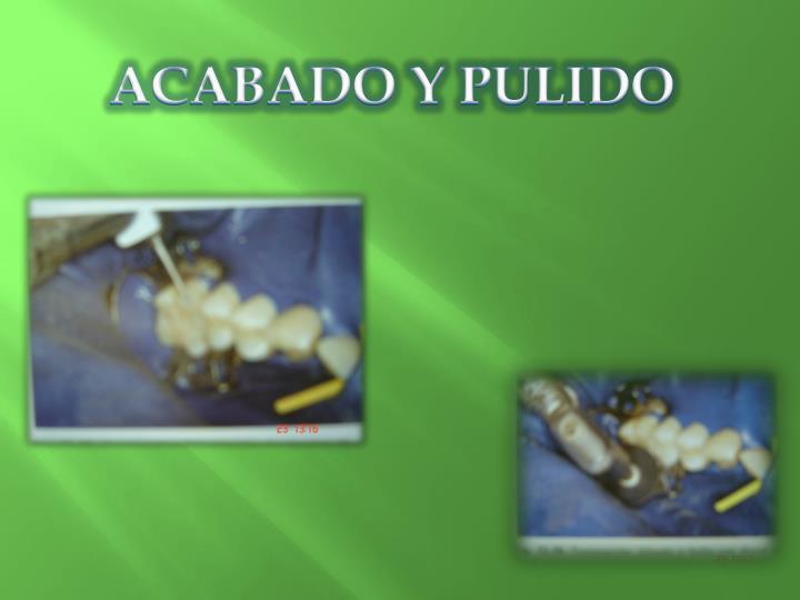 ACABADO Y PULIDO