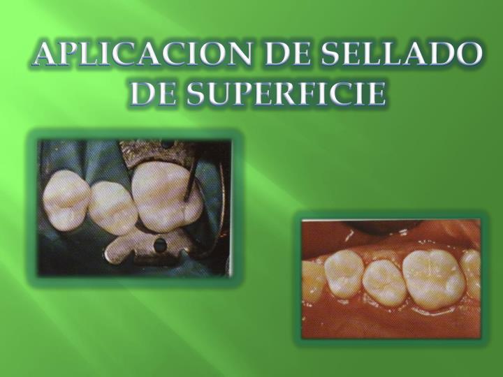 APLICACION DE SELLADO DE SUPERFICIE