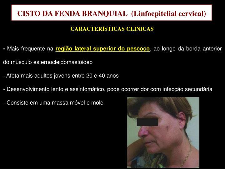 CISTO DA FENDA BRANQUIAL  (
