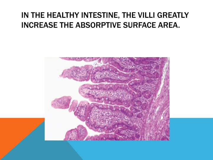 In the healthy intestine, the villi greatly increase the absorptive surface area.