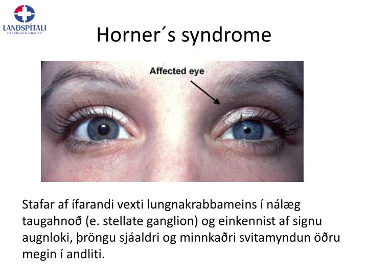 Horner´s syndrome
