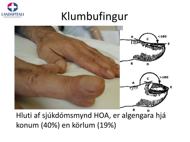 Klumbufingur