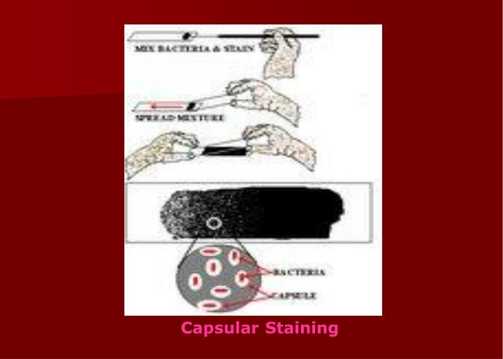 Capsular Staining
