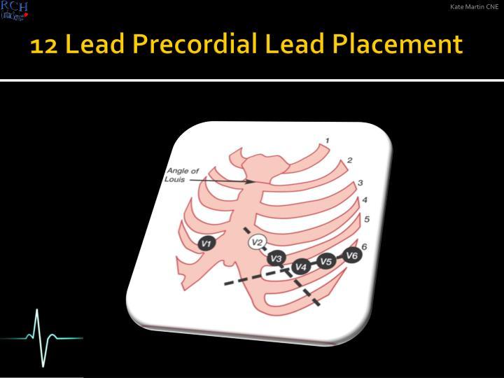 12 Lead Precordial Lead Placement