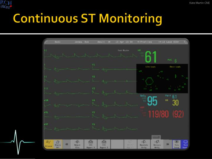 Continuous ST Monitoring