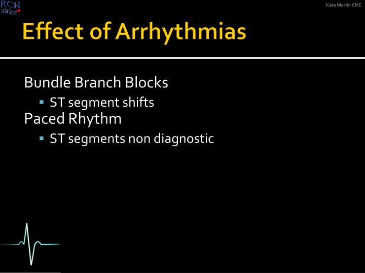 Effect of Arrhythmias