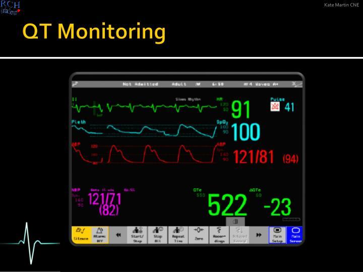 QT Monitoring